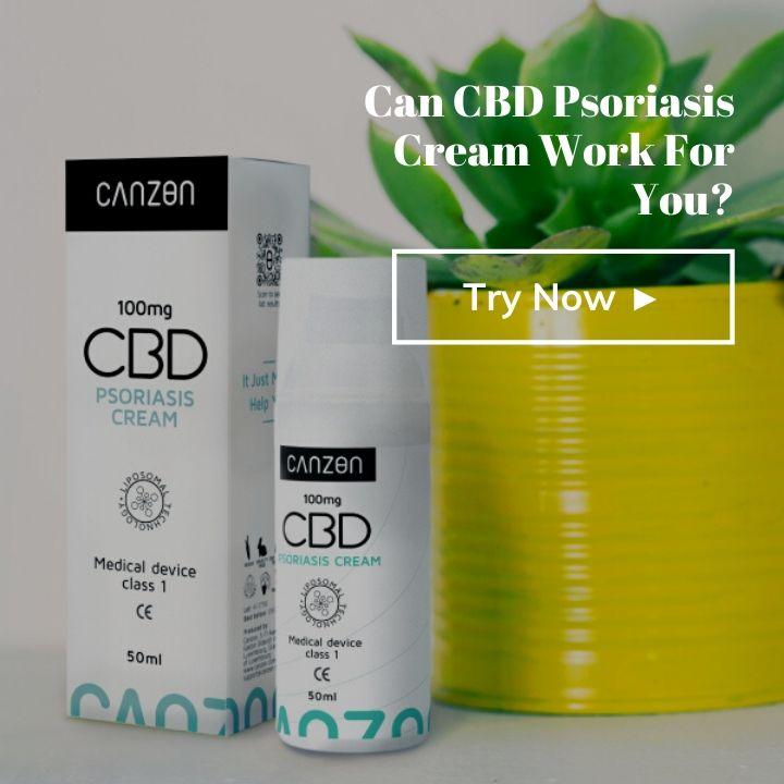 Can CBD Psoriasis Cream work for you?