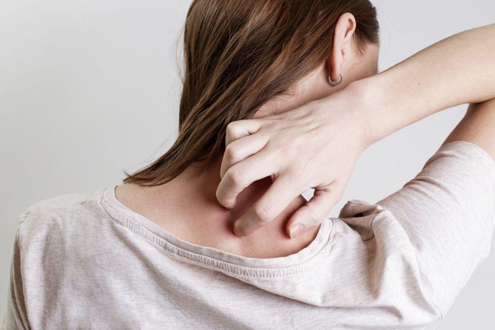 Le CBD est-il efficace pour le psoriasis?