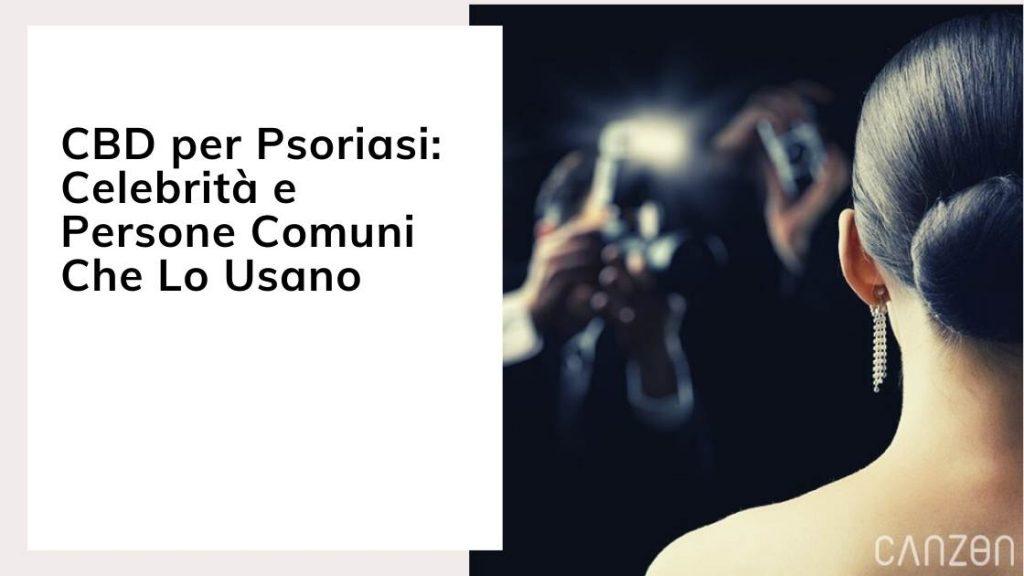 CBD per Psoriasi: Celebrità e Persone Comuni Che Lo Usano